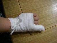 Little_finger_break